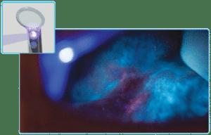 identafi oral cancer violet mode